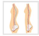 姿勢が良くなり、猫背や巻き肩、足の長短が改善されます!