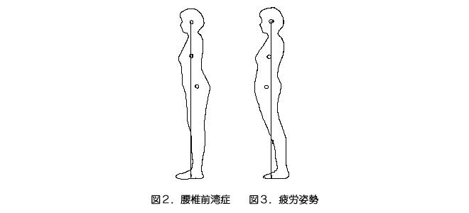腰椎前湾症/疲労姿勢